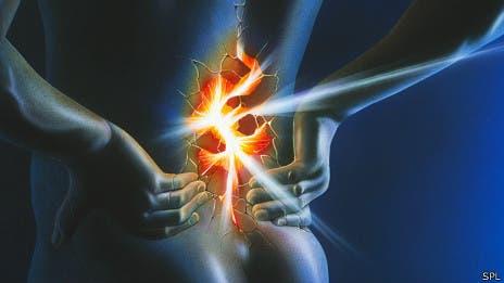 Dolor de espalda, la mayor causa de discapacidad