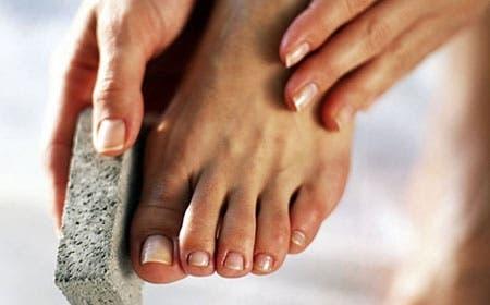 Conozca los remedios caseros que te ayudarán a eliminar los callos en los pies