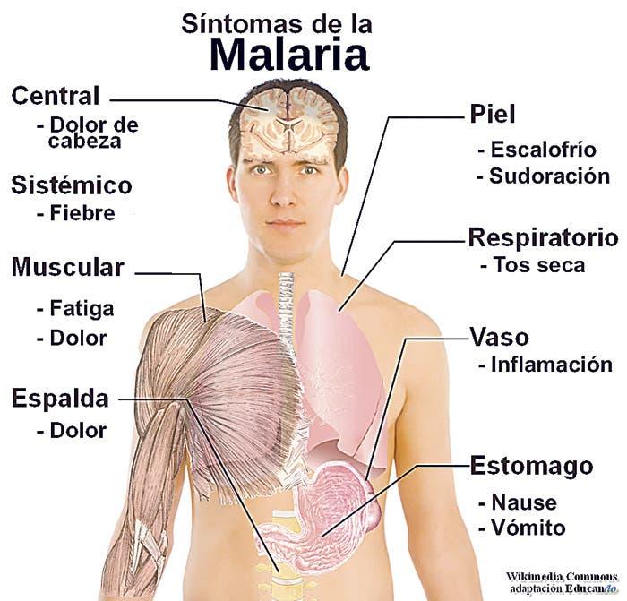 sintomas de la malaria