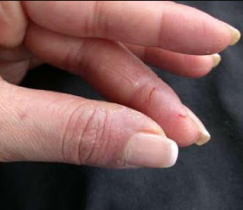 Uso inadecuado de las uñas postizas causa graves daños