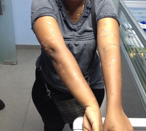 Policía apresa hombre que hirió una mujer 57 veces con una tijera