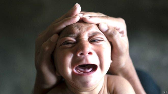 Las fotos de José Wesley, el niño brasileño afectado de microcefalia, dieron la vuelta al mundo.