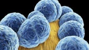 El estafilococo aureus es una de las bacterias resistentes a los antibióticos.