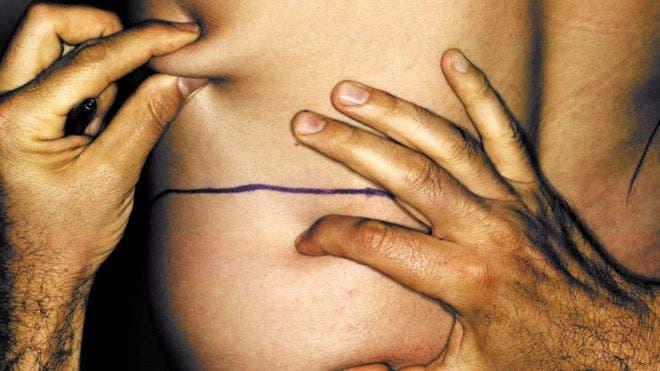 Una de cada cuatro cirugías estéticas entre los hombres de Estados Unidos es una liposucción.