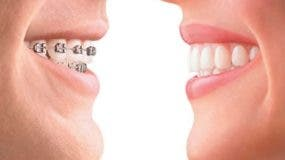 La mejor opción es la  recomendada por el ortodoncista según  edad, cooperación, presupuesto y necesidades de cada paciente.