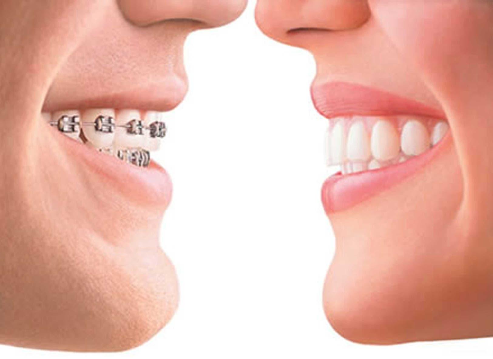 Opciones para lograr una sonrisa perfecta
