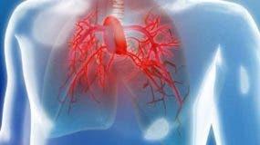 La hipertensión pulmonar es un aumento de la presión  en los vasos que llevan  sangre a  pulmones.