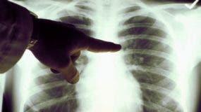 _96877903_pulmones