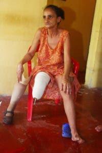 Azalia ha solicitado ayuda para comprar una goma nueva para su prótesis, pero no la ha conseguido.