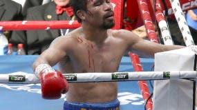 El filipino Manny Pacquiao reacciona tras la decisión adversa de los jueces en su pelea del domingo 2 de julio de 2017, por el cetro welter de la Organización Mundial de Boxeo, ante el australiano Jeff Horn, en Brisbane (AP Foto/Tertius Pickard)