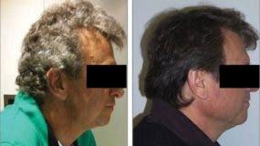 De los 52 pacientes con cáncer de pulmón, 14 sufrieron una transformación en la pigmentación de su cabello.