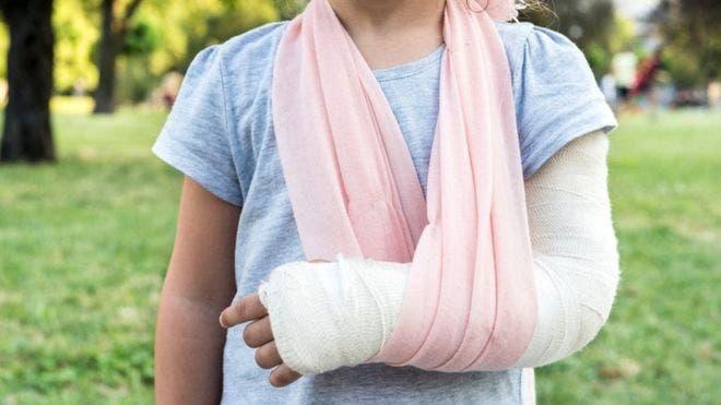 Los implantes con biovidrio está comenzando a revolucionar el tratamiento de fracturas.