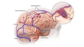malformaciones-arteriovenosas