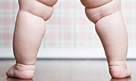 ejercicios-para-ninos-obesos