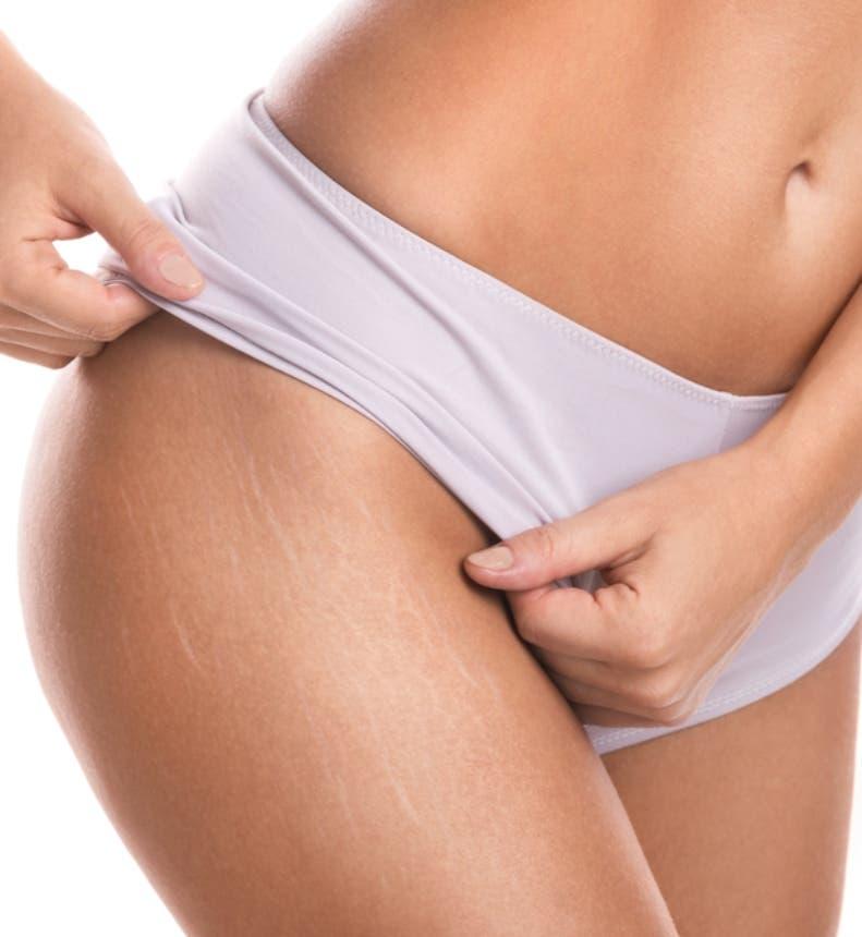 Las estrías son un gran problema estético para las mujeres.