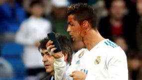 Un golpe en la cabeza de Ronaldo le provocó un corte cerca de su ojo, pero su reacción fue lo que llamó más la atención.