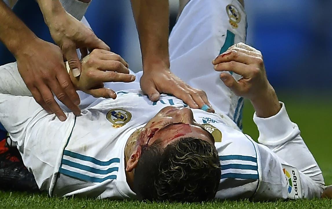 Cristiano Ronaldo recibió un golpe de Schär cuando remató de cabeza el sexto gol del Real Madrid. AFP.