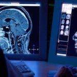 Desde hace tiempo se sabe que lesiones en el cerebro pueden afectar la personalidad.