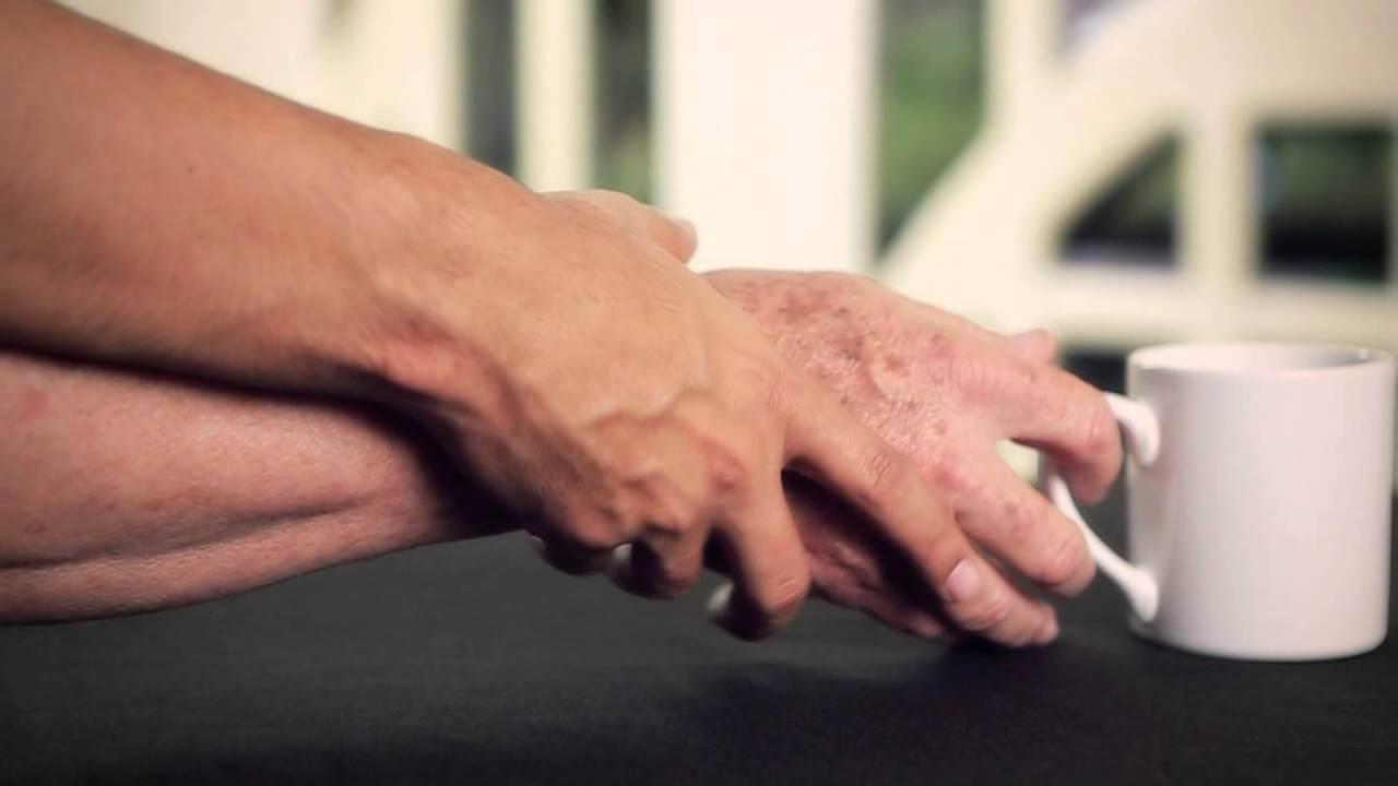 Una estimulación que ayuda a los pacientes de Parkinson a recuperar el control