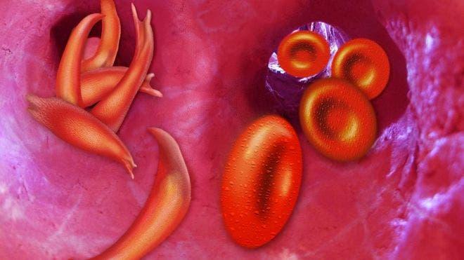 Con la anemia de células falciforme los glóbulos rojos se vuelven rígidos y pegajosos y tienen forma de hoz o de luna creciente en lugar de ser redondos como los glóbulos normales.