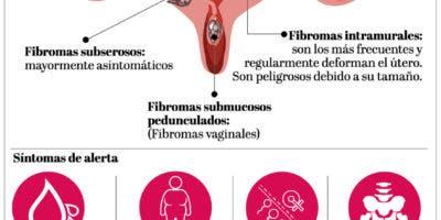 info-fibromas-tipos