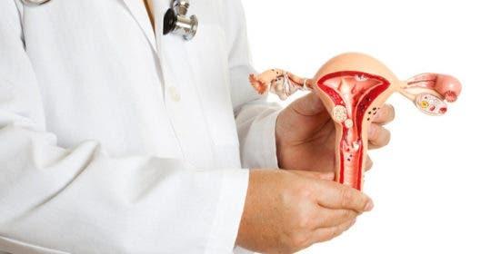 lechenie-endometrioza-matki-540x280