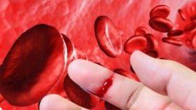 Los sangrados   debido a esta enfermedad se dan con frecuencia en las articulaciones y los músculos.