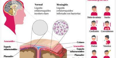 info-meningitis