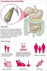 info-vesicula-biliar