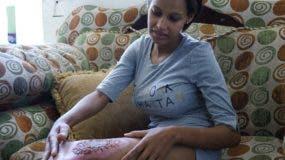 Mujer fue quemada cuando  le practicaban cesárea.  Eliezer tapia