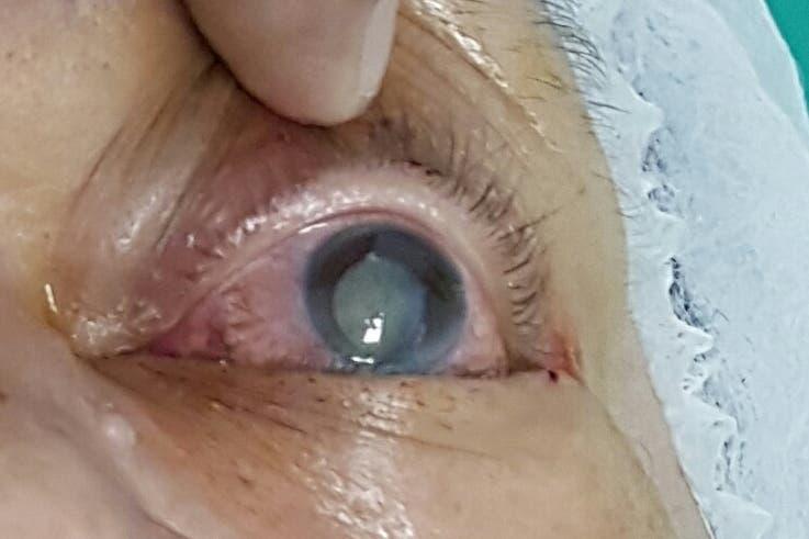 Cataratas son la causa más común de ceguera en personas de edad avanzada