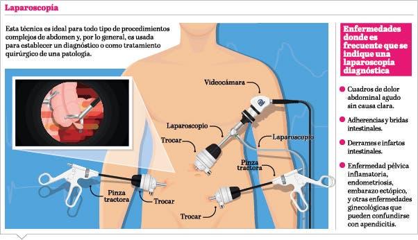 info-laparoscopia