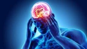 Aunque la migraña es una de las principales de incapacidades laborales, es uno de los dolores menos estudiados.