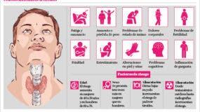 info-tiroides