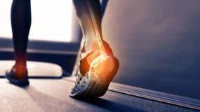Ignorar el problema puede causar un dolor crónico que condicionará las actividades cotidianas que realiza una persona.