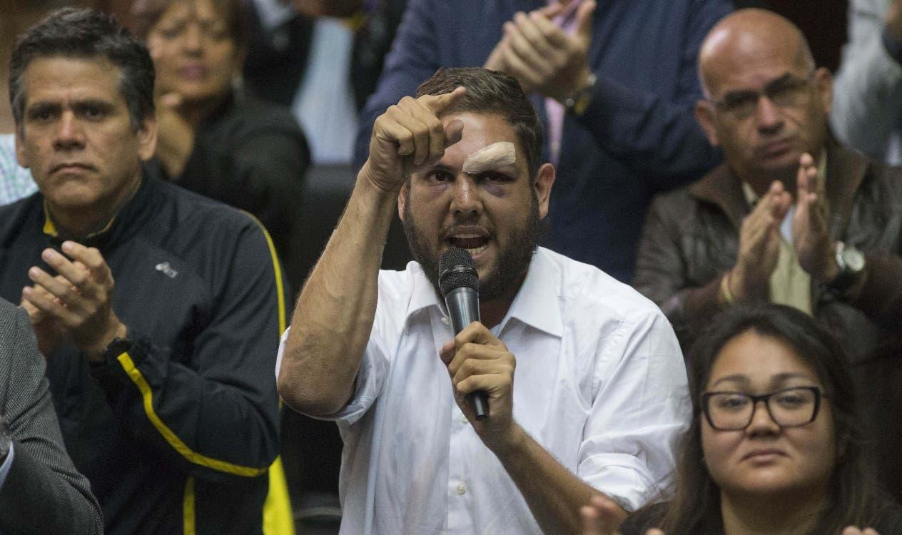 Juan Requesens, detenido ayer por agentes del Servicio Bolivariano de Inteligencia (Sebin).