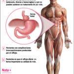 info-hernia-hiatal