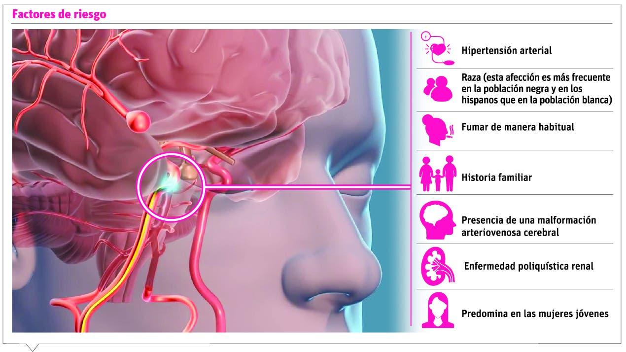 info-aneurisma-cerebral-ii