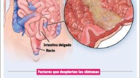 info-crohn