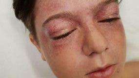 Los médicos compararon las lesiones de Tyler con las sufridas por los pilotos de combate cuando no están usando una máscara de oxígeno.