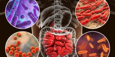 Los factores ambientales pueden jugar un papel importante en el desarrollo de las enfermedades  inflamatorias.