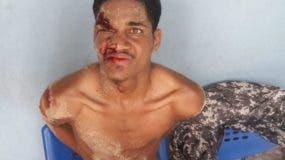 Nailyn Carrasco Castillo, de 22 años, acusado de asesinar su madrastra.