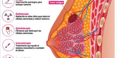 info-tratamiento-cancer-de-mama