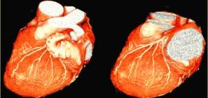 El equipo ofrece una imagen de alta resolución y emite  menor cantidad radiación al paciente.