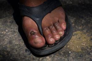 En esta fotografía del 31 de octubre de 2018, moscas cubren una de las ampollas en los pies del migrante hondureño Gerson Noel Rivas después de que una caravana de migrantes que se dirige a Estados Unidos hizo una escala en el poblado de Juchitán, México, tras un día de caminar. (AP Foto/Rodrigo Abd)