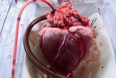 El corazón fue enviado a un procesador de tejido.