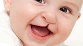 Bebé con malformación de paladar hendido.