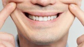 sonrisa-forzada