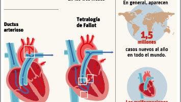 info-cardiopatias-congenitas