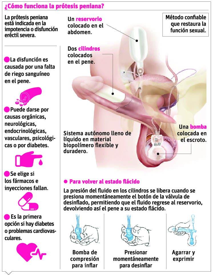 info-implante-peneano